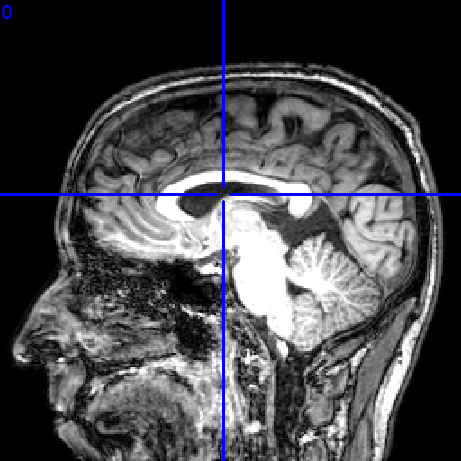 My brain, scanned on September 30th, 2008.